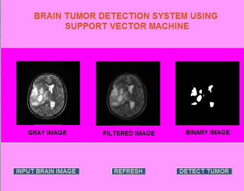 Brain Tumor Detection System using Support Vector Machine (SVM)