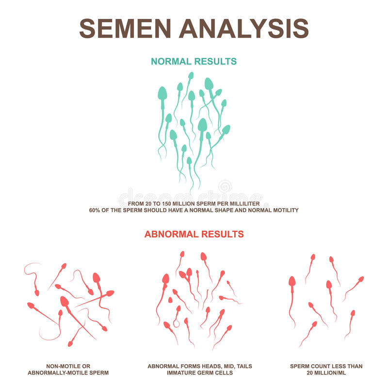 SEMEN CLASSIFICATION USING ADAPTIVE NEURO FUZZY INFERENCE SYSTEM - CodeMint Mint for Sale